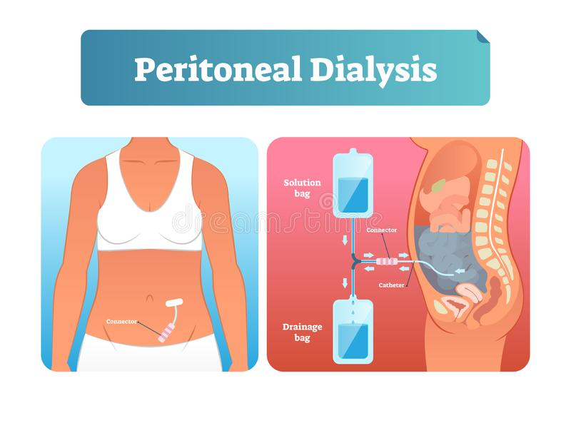 Peritoneal dialysis vector illustration. Labeled method to exchange fluids. Peritoneal dialysis vector illustration. Labeled scheme with method to exchange stock illustration