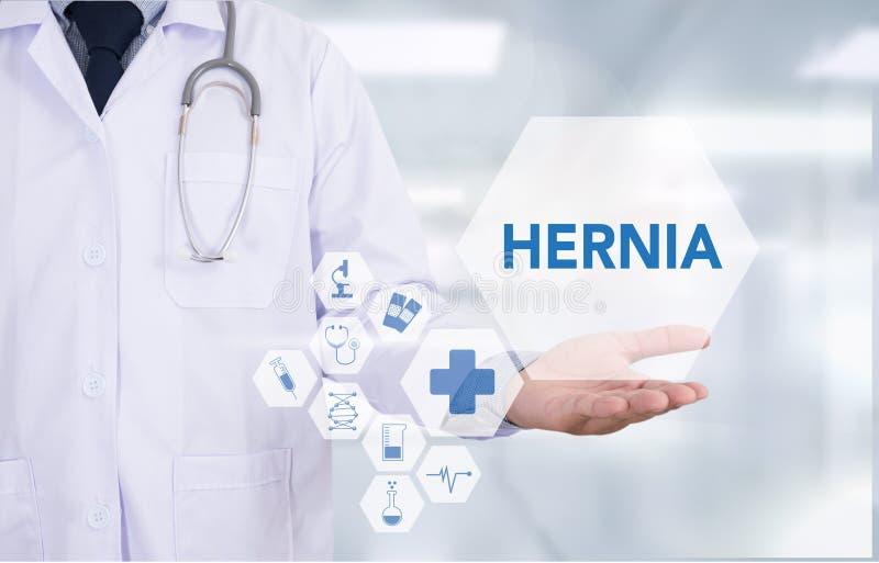 Perizia medica di ERNIA con composizione dei medicinali - pillole, I fotografia stock