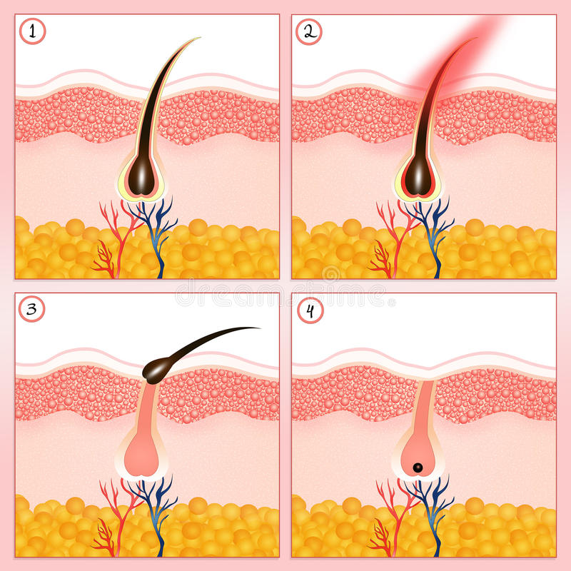 Permanent hair removal royalty free illustration
