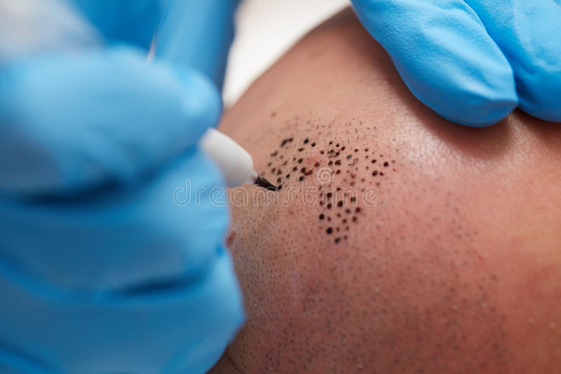 Permanent make up tricopigmentation. Professional tattooist making permanent make up tricopigmentation royalty free stock images