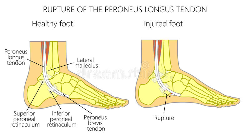 Peroneal Tendon Injuriesrupture Of The Peroneus Longus Tendon Stock