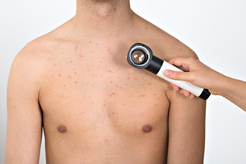 Person Examining Acne Skin With Dermatoscope fotografia de stock royalty free