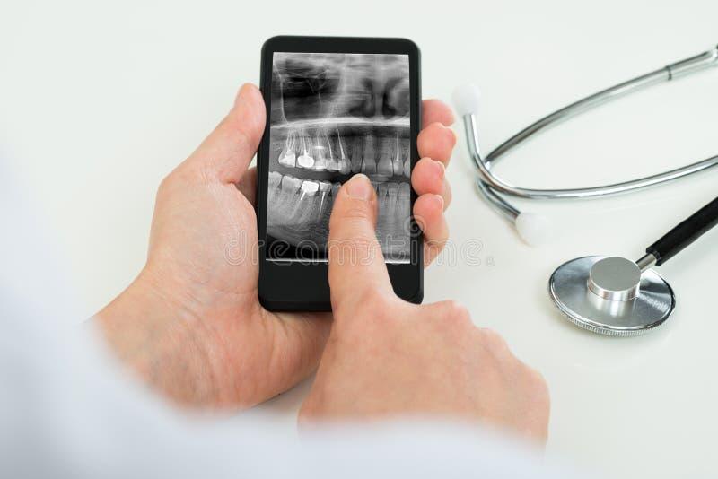 Person mit zahnmedizinischem Röntgenfilm am Handy lizenzfreie stockbilder
