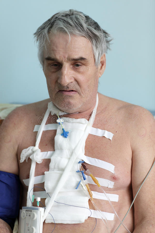 Person with pacemaker. After heart surgery in a hospital ward royalty free stock photography