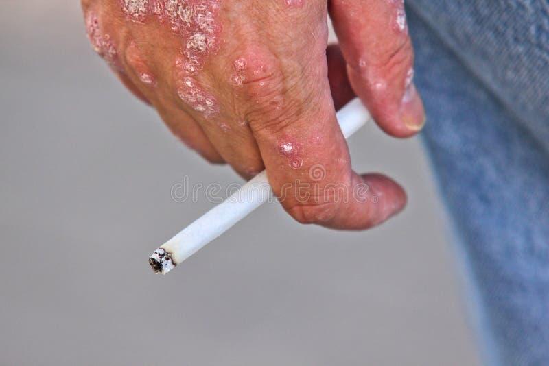 Person With Psoriasis, Smoking Royalty Free Stock Image