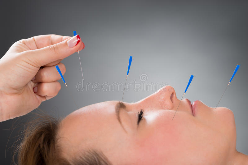 Person Putting Acupuncture Needle On-Gezicht van Vrouw stock foto