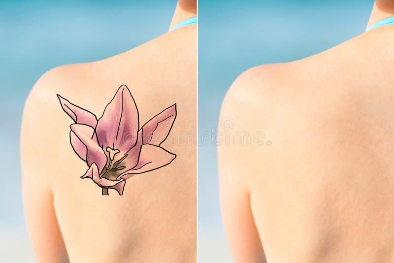 Person Showing Laser Tattoo Removal-Behandeling op Schouder royalty-vrije stock afbeeldingen