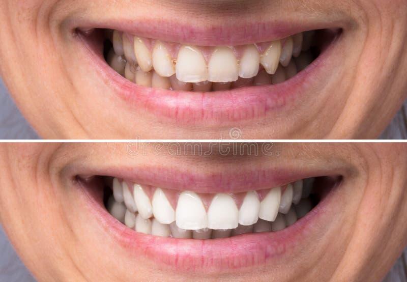 Person Teeth Before And After blekmedel royaltyfria bilder