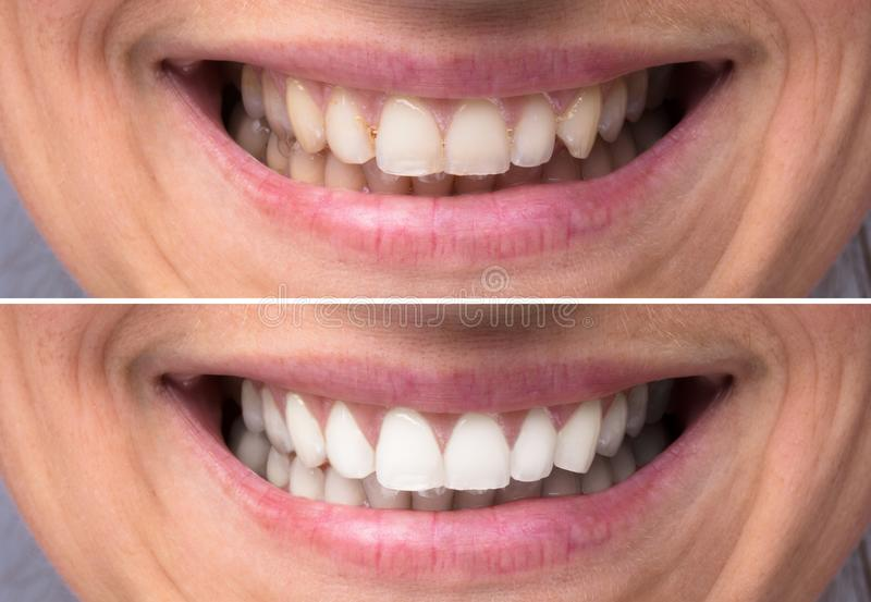 Person Teeth Before And After Whitening royalty free stock images
