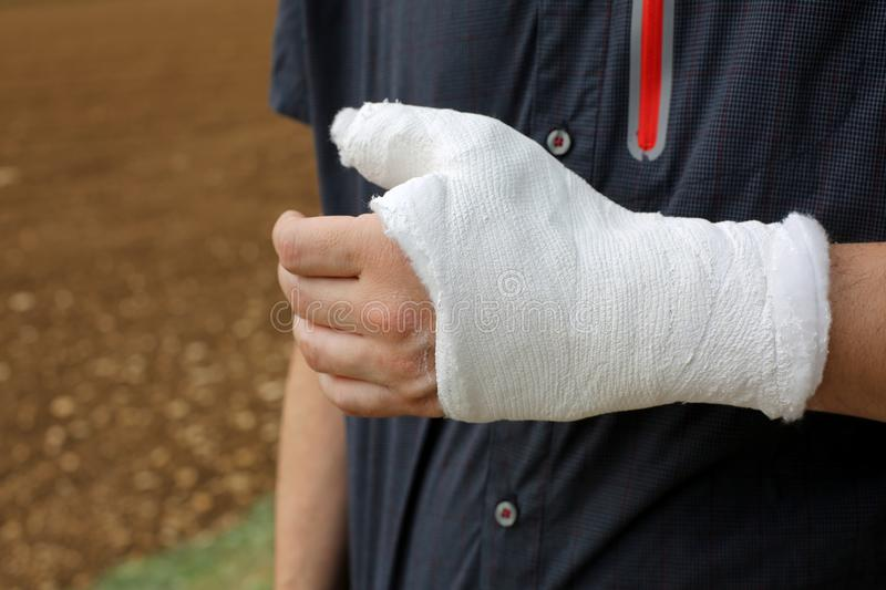 Person with the thumb and wrist completely plastered after the f royalty free stock images