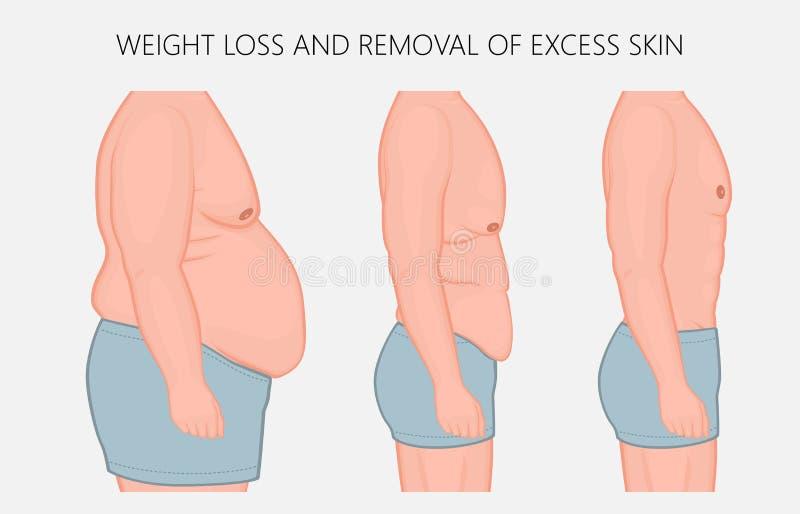 Perte de problem_Weight de corps humain et retrait de côté excédentaire de peau v illustration stock