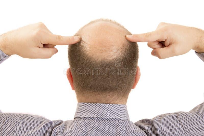 Perte des cheveux de calvitie d'alopécie d'homme photo stock