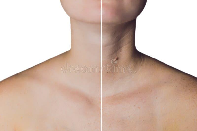 Pescoço de uma mulher antes e depois do botox Pescoço novo e velho imagem de stock royalty free