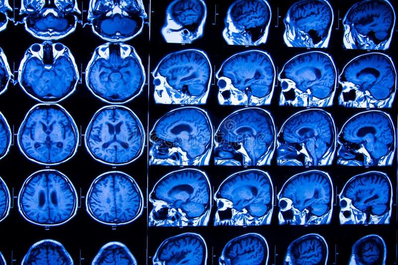 Pesquisa na medicina Varredura do CT do paciente fotos de stock royalty free
