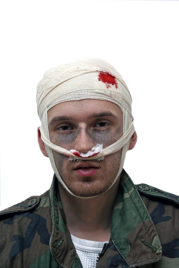 Pessoa ferida foto de stock