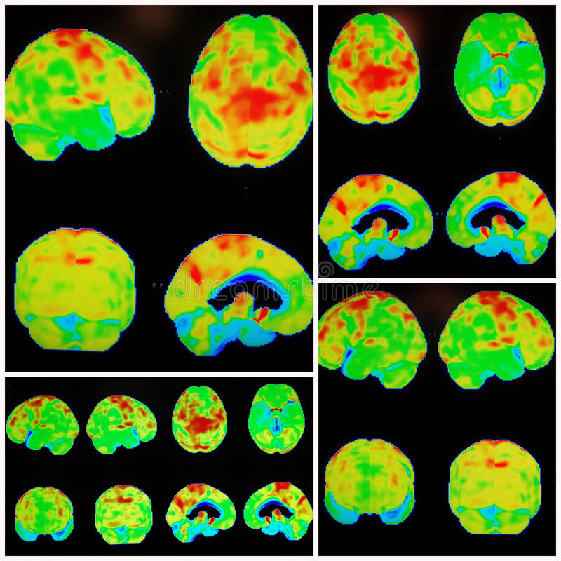 Pet ct alzheimer dementia pattern collage. Modern nuclear medicine PET/CT protocols made possible to see different pathology of the brain more clear ,as example royalty free stock photos