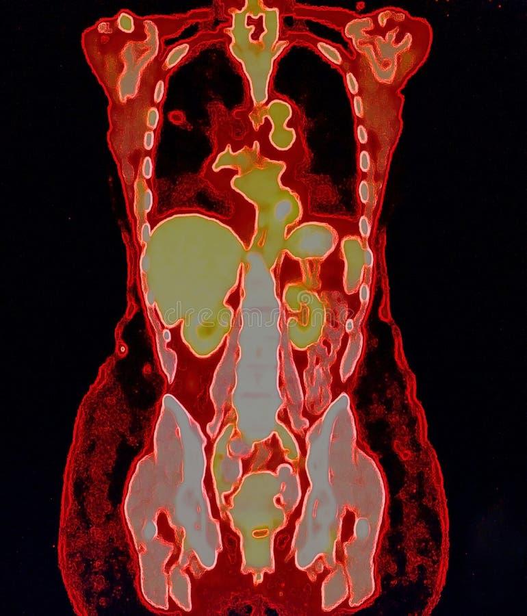 pet/ct de cancer de poumon photographie stock libre de droits