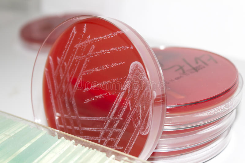 Petri πιάτα με το αγάρ αίματος και τις βακτηριακές αποικίες στοκ εικόνα
