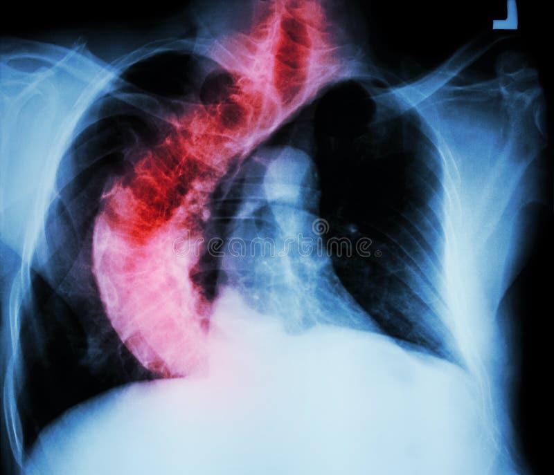 Petto dei raggi x di scoliosi (spina dorsale curvata) della gente anziana con il croo fotografie stock