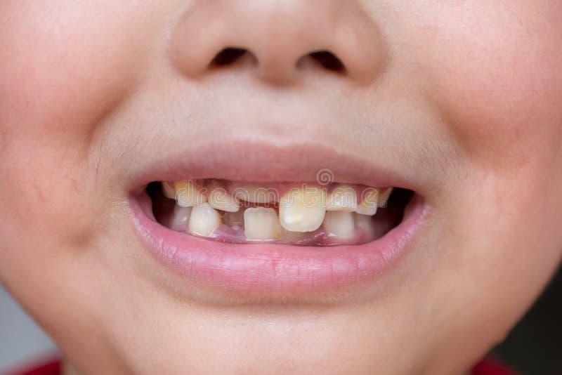 Peu enfant et dents cass?es photos libres de droits