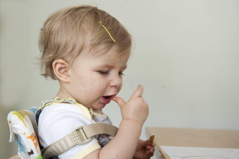 Peuter met hand, mond- en klauw ziekte stock afbeelding