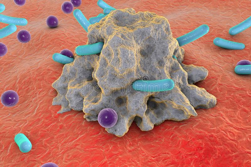 Phagocytose Macrophage engloutissant des bactéries de différentes formes illustration libre de droits
