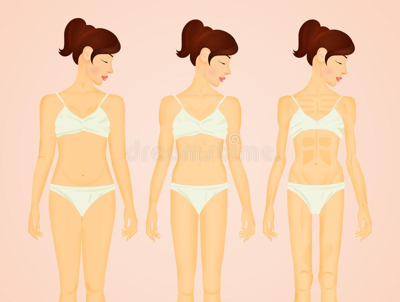 Phases of anorexia and bulimia. Illustration of phases of anorexia and bulimia royalty free stock photography