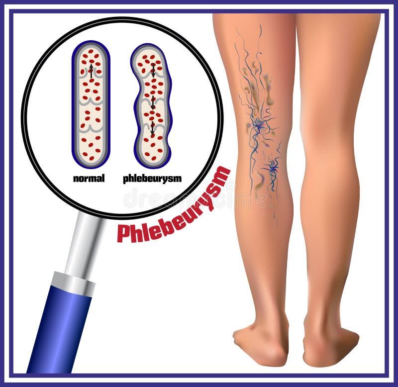 Phlebeurysm Veias varicosas ilustração do vetor