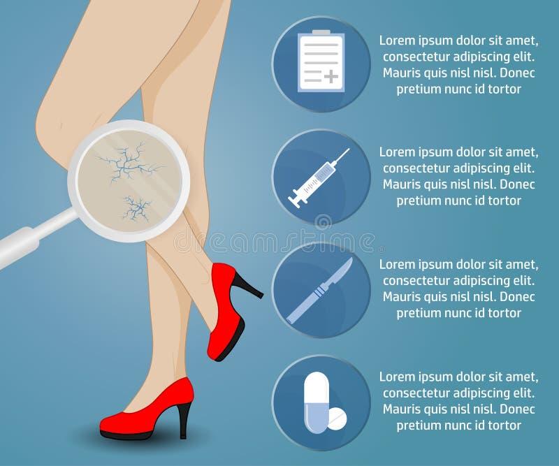 Phlebology vector infographics. Infographics phlebology, treating varicose veins on women's legs. Slender female legs in red shoes vector illustration
