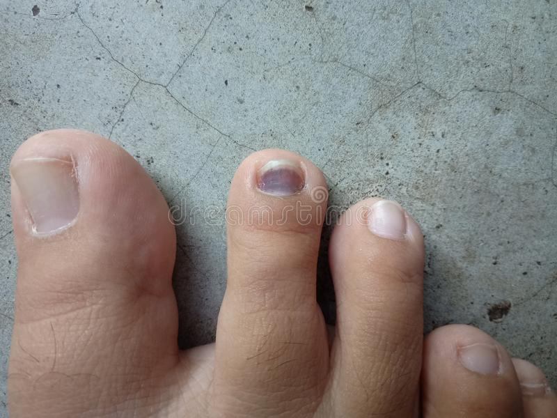 Photo of blood clotted nail. The photo of blood clotted nail taken on concrete floor stock photography