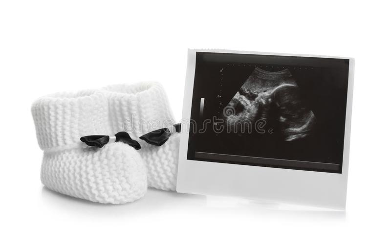 Photo d'ultrason et chaussures de bébé sur le fond blanc image stock