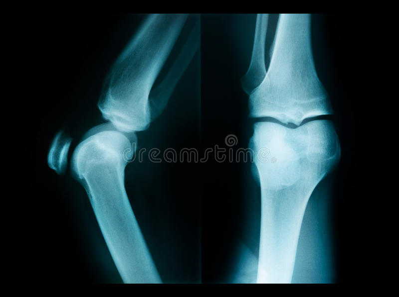Photo de rayon X montrant des articulations du genou image libre de droits