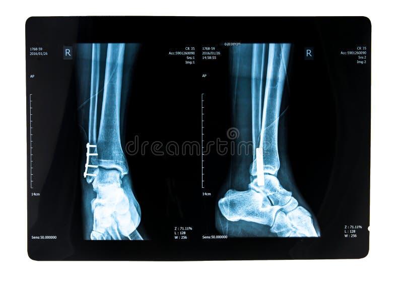 Photo de rayon X photos stock