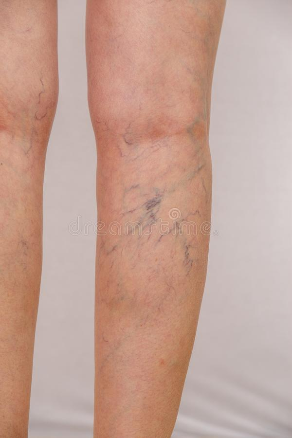 Photo of the legs of an old woman in white panties with cellulite and varicose veins on a light isolated background. Concept for medicine and cosmetology royalty free stock photo