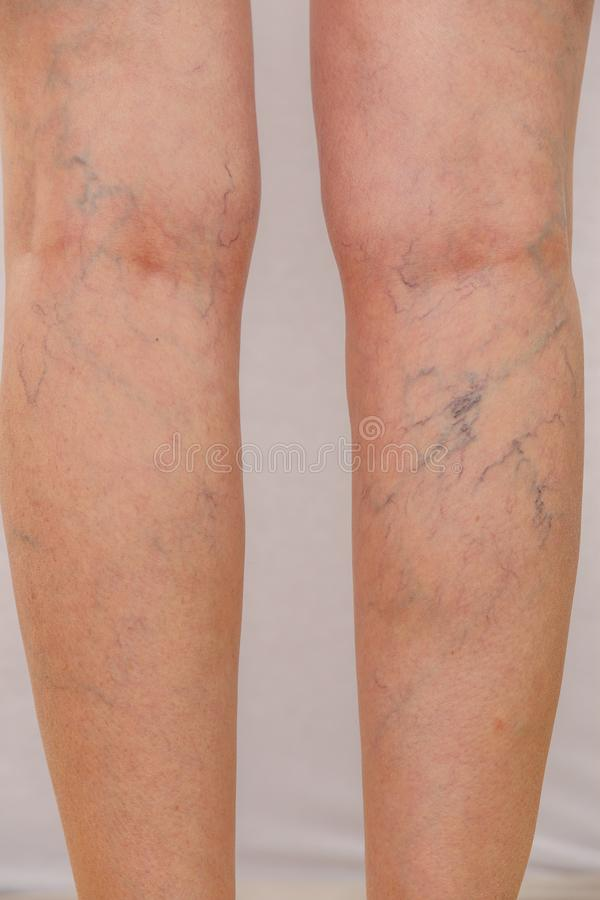 Photo of the legs of an old woman in white panties with cellulite and varicose veins on a light isolated background. Concept for medicine and cosmetology stock image