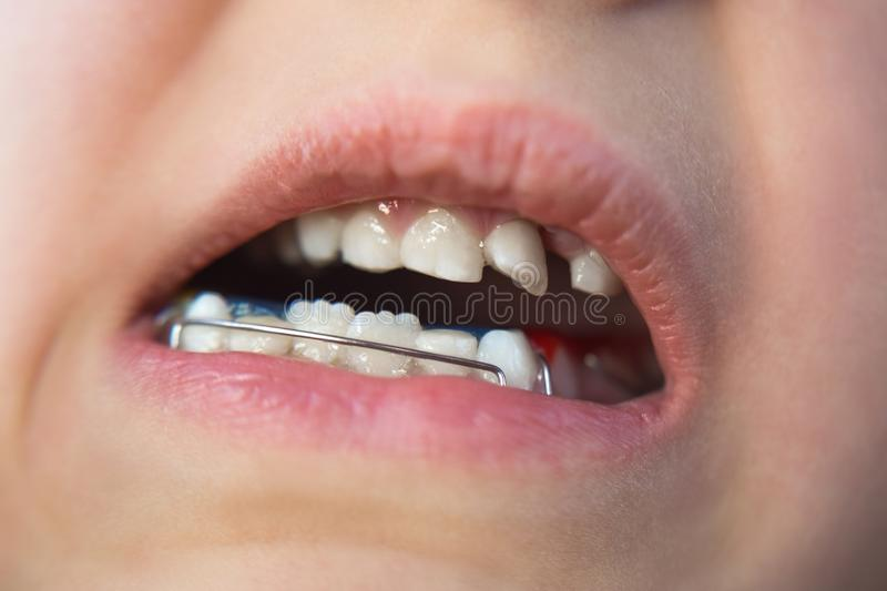 Photo of a little girl`s mouth with an orthodontic appliance and crooked teeth royalty free stock image