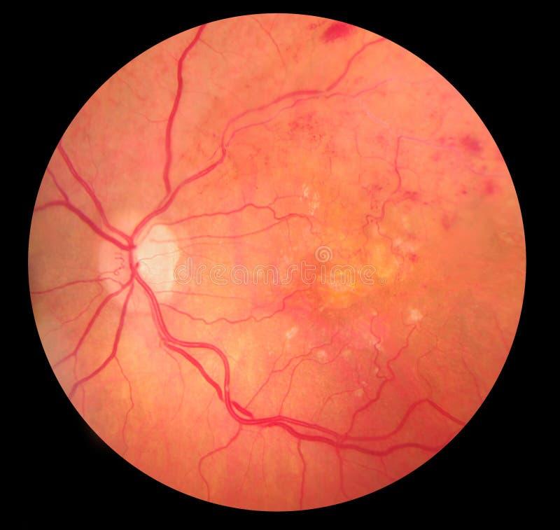 Photo médicale de fond d'hémorragie de retinopathy images stock