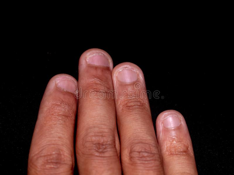 A photo of nails cut by teeth. Nail biting royalty free stock photos