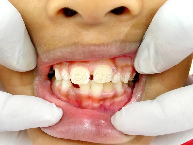 A Thai boy with Diastemas teeth problem onthe dental unit waitng to see the dentist in Hua Hin, Thailand April 1, 2018. Photo of A Thai boy with Diastemas teeth royalty free stock images