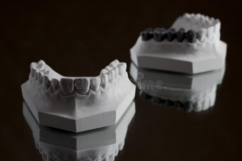 Photographie de la mâchoire inférieure sur un fond noir photos stock
