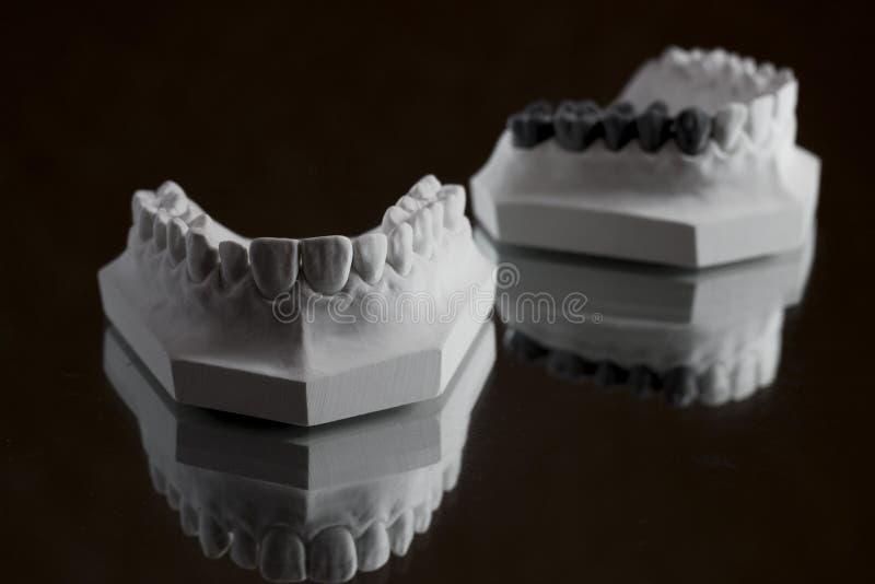 Photographie de la mâchoire inférieure sur un fond noir images stock