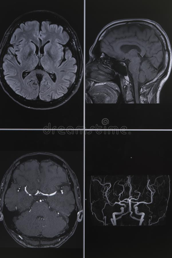 Photography of human brain magnetic resonance imaging. Photography ofhuman brain magnetic resonance imaging in axial and coronal view and magnetic resonance stock image