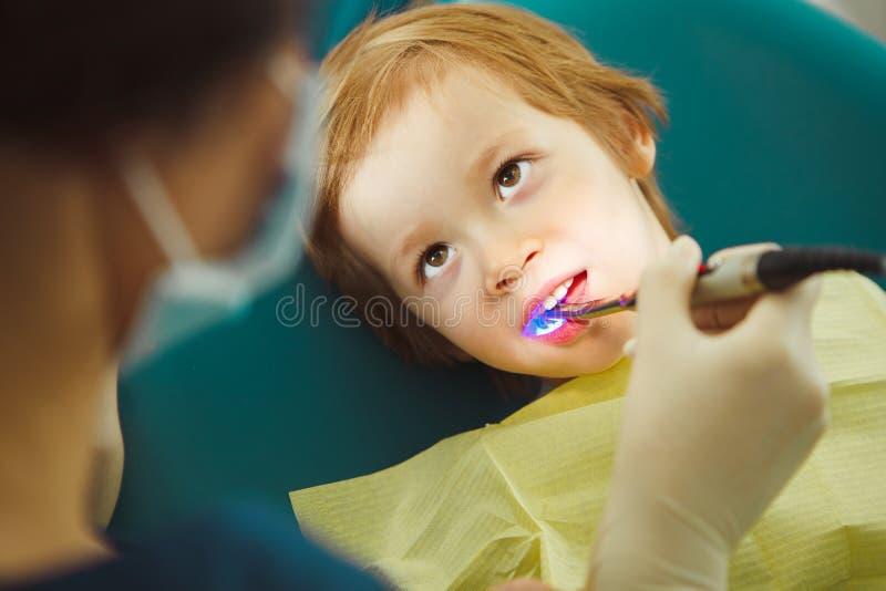 Photopolymer-Dichtungskind, pädiatrische Zahnheilkunde ohne die Schmerz stockfotos