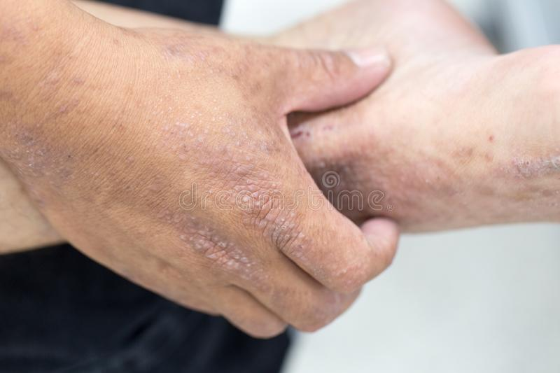 Atopic Dermatitis AD, Also Known As Atopic Eczema, Is A Type Of