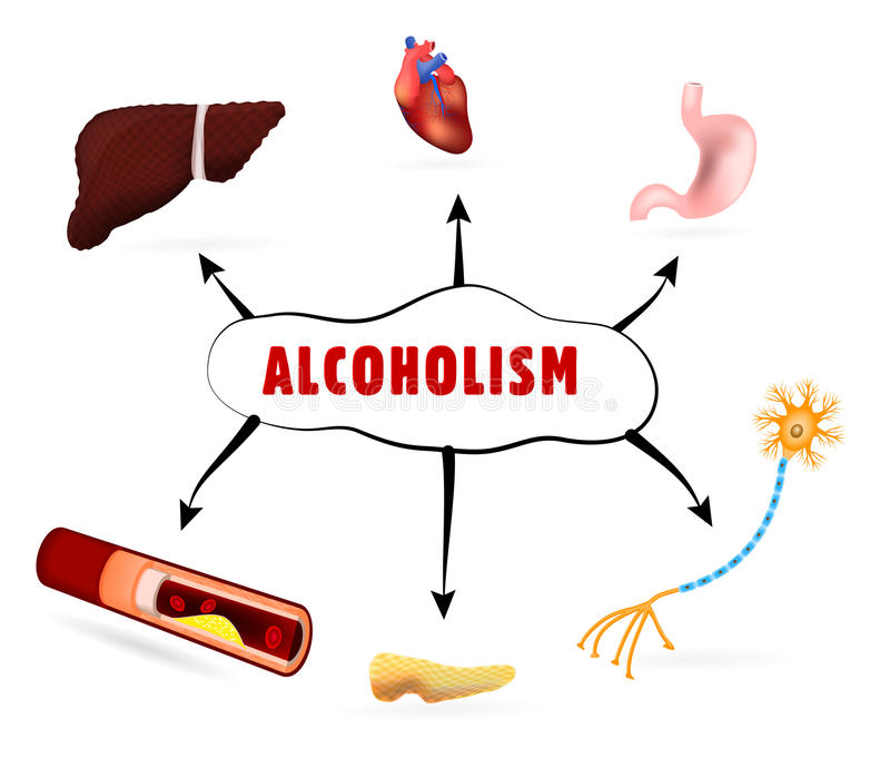 Physical effects of alcoholism. How Alcoholism and Alcohol Abuse Affect human Body stock illustration