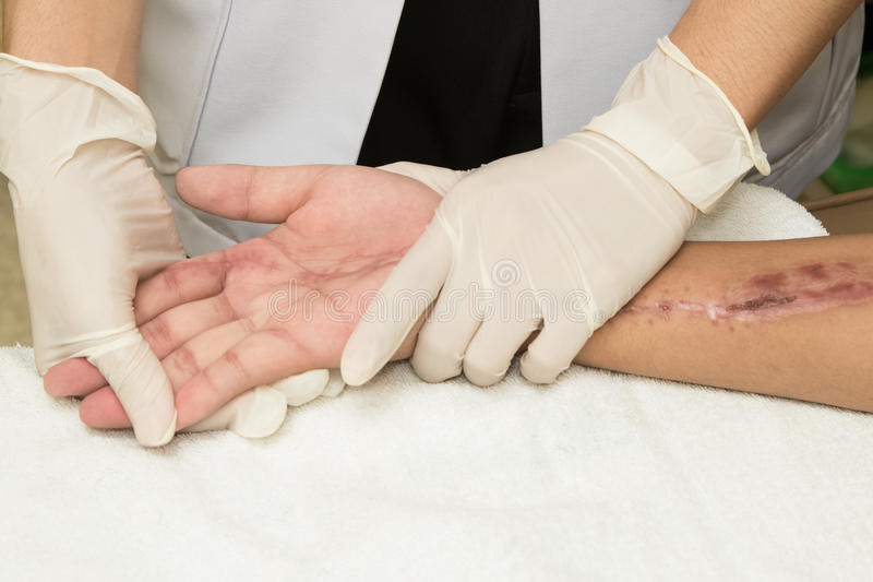 Physical therapist doing hand exercise stock photography