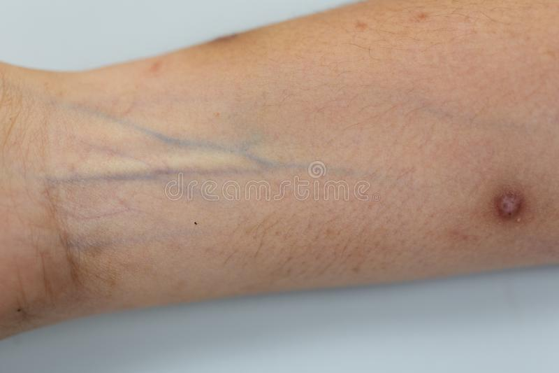 A physical of tissue, nerves, tendons at hand. A physical of tissue, nerves, tendons at hand for education in hospital stock photos
