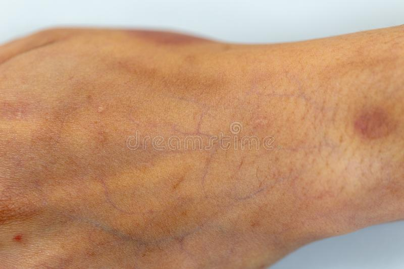 A physical of tissue, nerves, tendons at hand. A physical of tissue, nerves, tendons at hand for education in hospital royalty free stock photography
