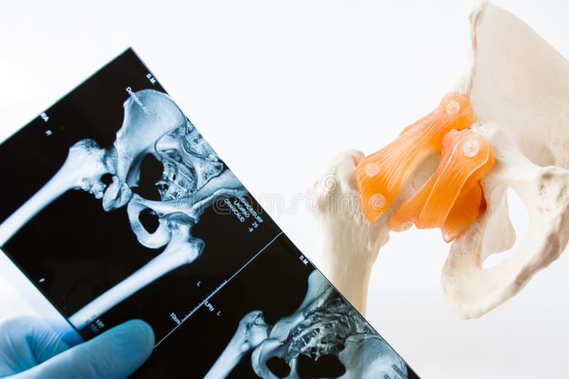 Physician, intern or student of medical university holds in his hand MRI CT scans of hip joint, comparing it with anatomical mod royalty free stock photos