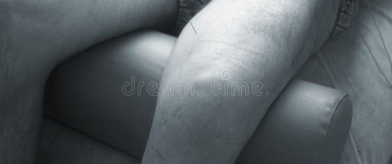 Physiotherapie acupunture stockbild